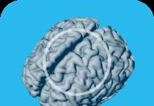 Brain Resource